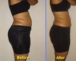 hcg weight loss results