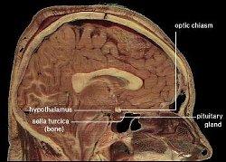 hcg hypothalamus