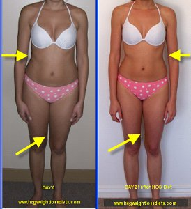 hcg before and after pictures