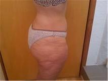 fotos despues de rebajar peso