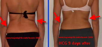 hCG 9 days after hCG sublingual diet formula, notice the back rolls gradually dissapearing