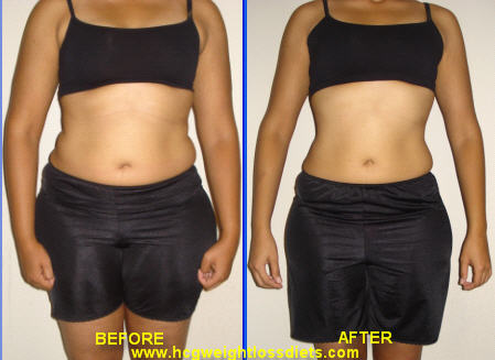hcg diet before and after photographs