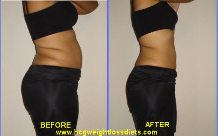 hcg photos after hcg diet