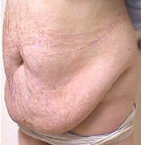 patient treated with low calorie diet