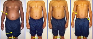 hcg diet testimonial for weight loss