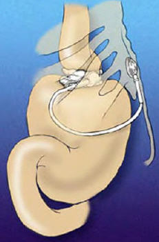 gastric bandage