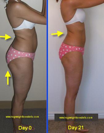 hcg weight loss program, VLCD hcg weight loss program results,