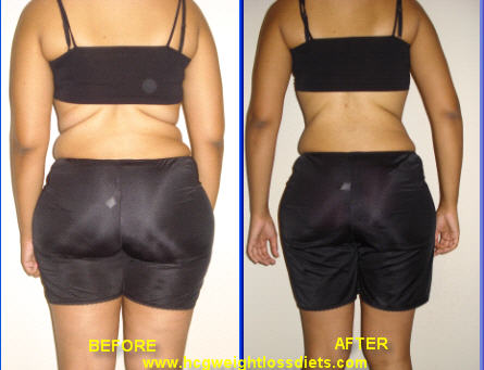 hcg weight loss before and after photos