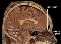The hCG hypothalamus is a region of the brain that controls an immense number of bodily functions.