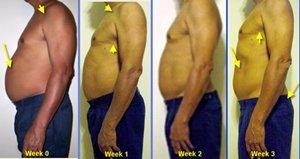 imagenes antes y despues perder peso
